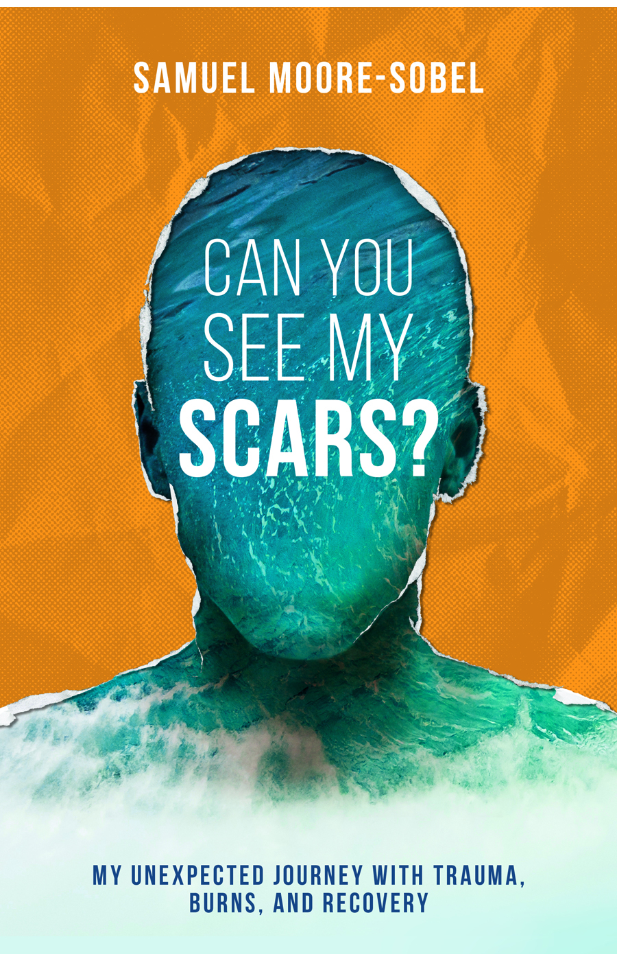 Can You See My Scars Cover